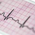 Papier EKG 104x40 - do Aparatów EKG Ascard 2 i Ascard 3