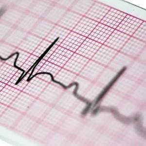 Papier EKG 60x25 - do Aparatów EKG AsCARD B5 oraz AsCARD MrRed.
