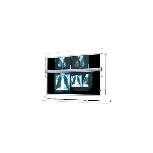 Negatoskop Żaluzjowy z Ruchomą Listwą do Mammografii NGP-41MZU
