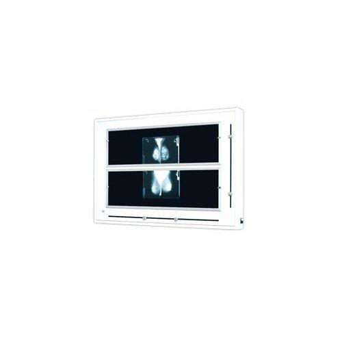 Negatoskop Żaluzjowy do Mammografii NGP-41MZ