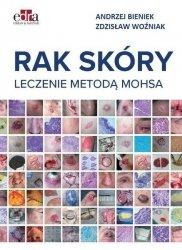 Rak skóry Leczenie metodą Mohsa