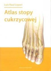 Atlas stopy cukrzycowej