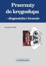 Przerzuty do kręgosłupa diagnostyka i leczenie