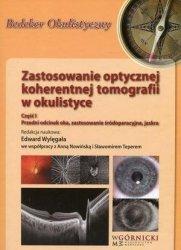 Zastosowanie optycznej koherentnej tomografii w okulistyce Część 1 Przedni odcinek oka, zastosowanie śródoperacyjne, jaskra
