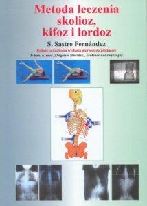 Metoda leczenia skolioz kifoz i lordoz