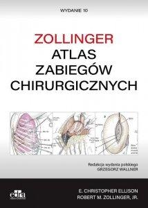 Atlas zabiegów chirurgicznych Zollinger
