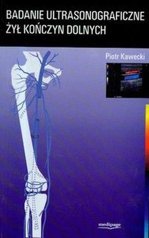 Badanie ultrasonograficzne żył kończyn dolnych