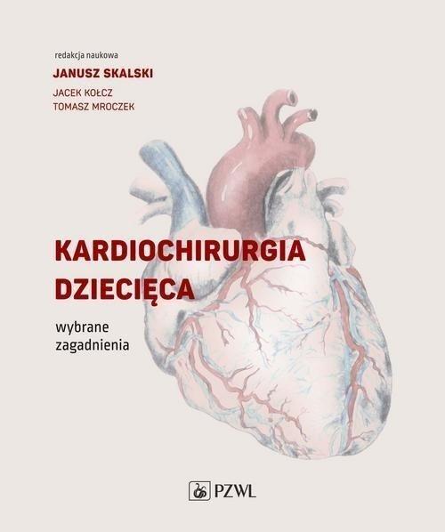 Kardiochirurgia dziecięca Wybrane zagadnienia