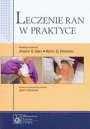 Leczenie ran w praktyce