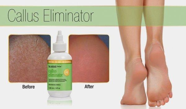 Preparat do usuwania zrogowaciałej skóry Prolinc Callus - 29 ml