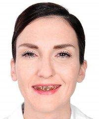 Lakier do zębów - brąz 12 ml