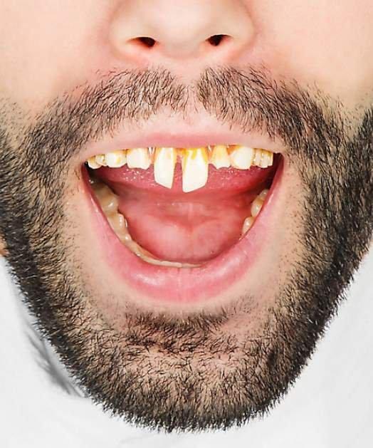 Sztuczne zęby - Neandertalczyk