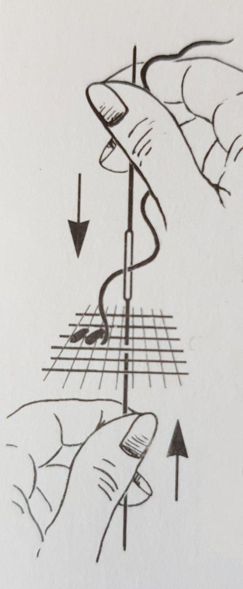 schemat użycia igły dwustronnej