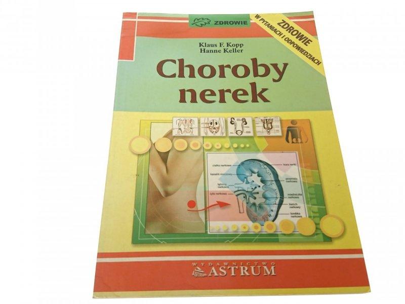 CHOROBY NEREK - Klaus F. Kopp 1997