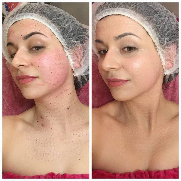 Bielenda - Post Treatment Care - Cover Cream - Tonująco - łagodzący krem do twarzy 100 ml