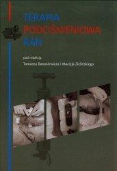 Terapia podciśnieniowa ran
